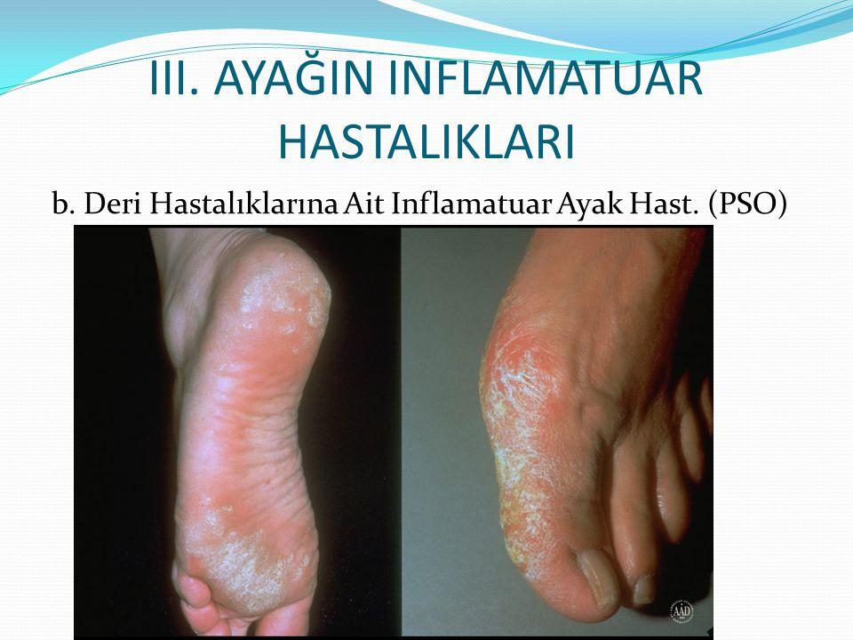 III. AYAĞIN INFLAMATUAR HASTALIKLARI b. Deri Hastalıklarına Ait Inflamatuar Ayak Hast. (PSO)