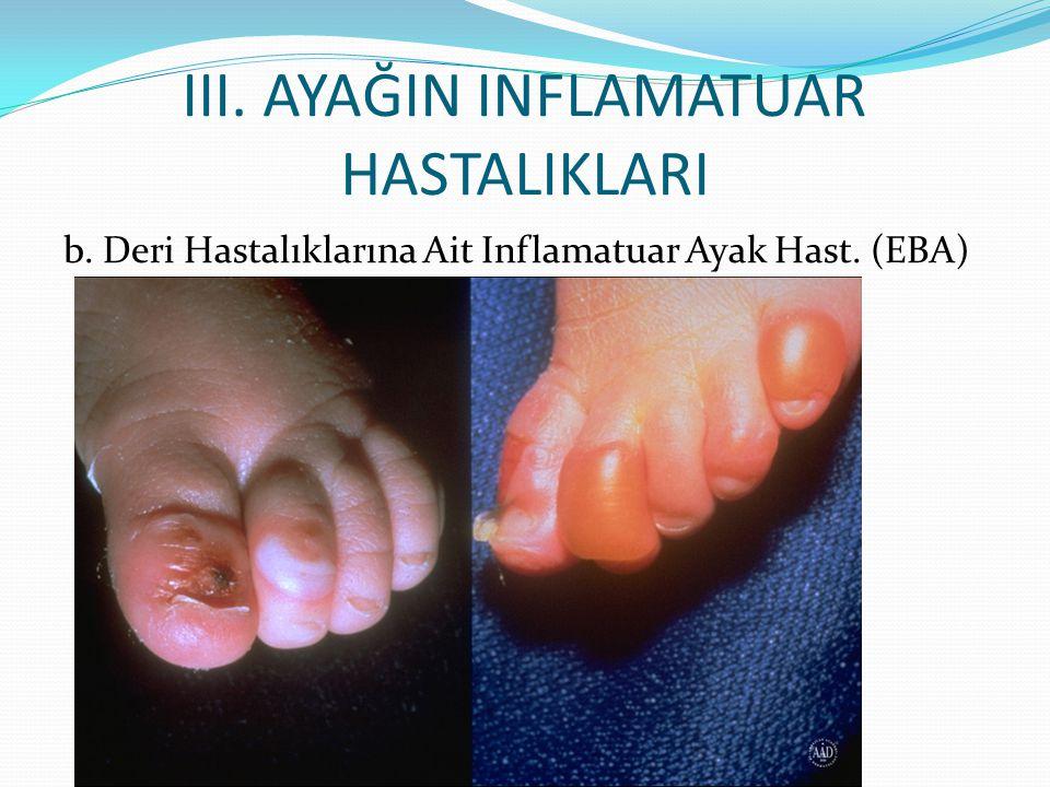 III. AYAĞIN INFLAMATUAR HASTALIKLARI b. Deri Hastalıklarına Ait Inflamatuar Ayak Hast. (EBA)