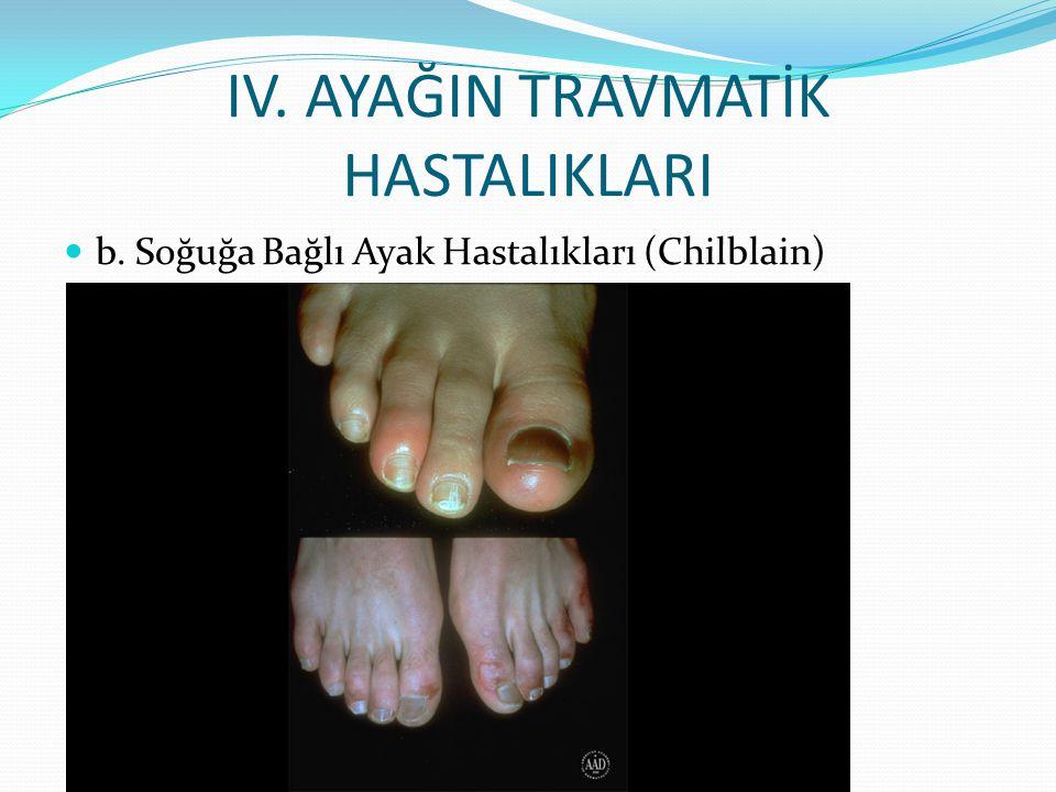 IV. AYAĞIN TRAVMATİK HASTALIKLARI b. Soğuğa Bağlı Ayak Hastalıkları (Chilblain)