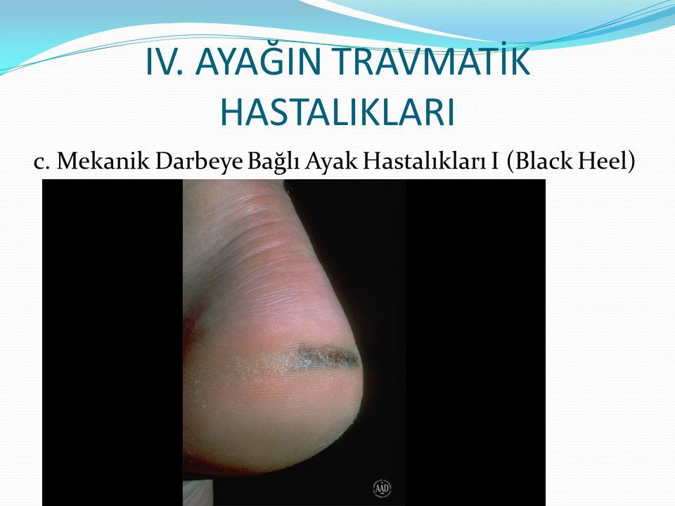 IV. AYAĞIN TRAVMATİK HASTALIKLARI c. Mekanik Darbeye Bağlı Ayak Hastalıkları I (Black Heel)