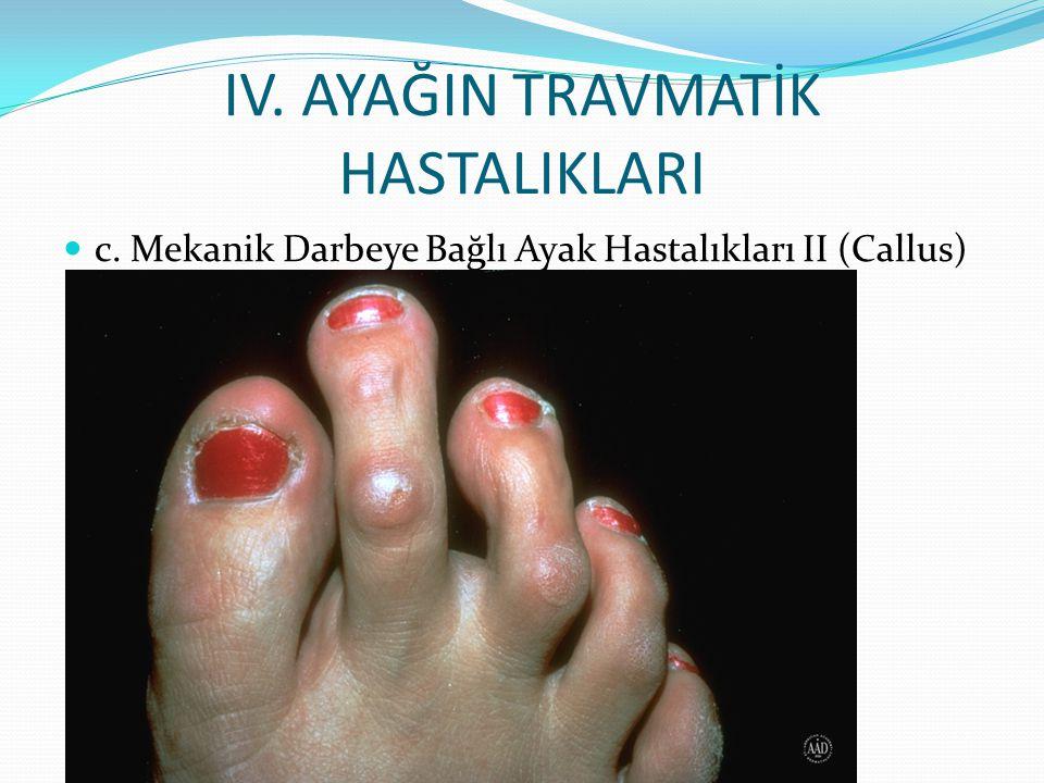 IV. AYAĞIN TRAVMATİK HASTALIKLARI c. Mekanik Darbeye Bağlı Ayak Hastalıkları II (Callus)