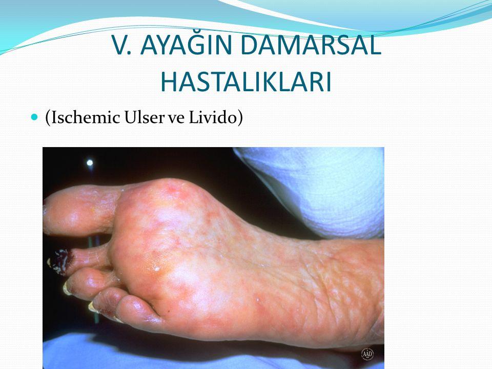 V. AYAĞIN DAMARSAL HASTALIKLARI (Ischemic Ulser ve Livido)