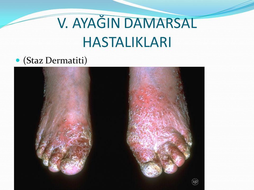 V. AYAĞIN DAMARSAL HASTALIKLARI (Staz Dermatiti)