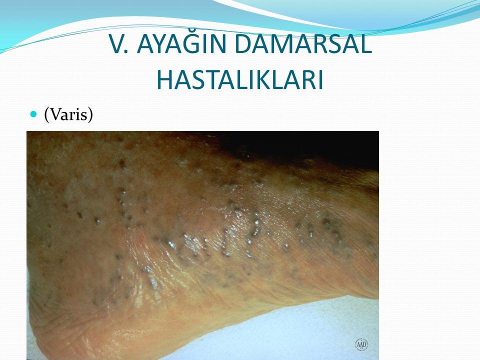 V. AYAĞIN DAMARSAL HASTALIKLARI (Varis)