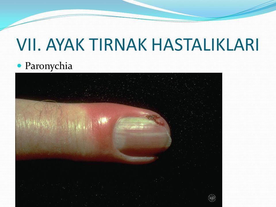 VII. AYAK TIRNAK HASTALIKLARI Paronychia