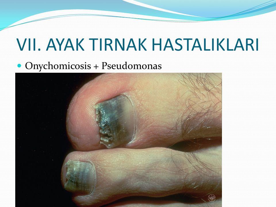 VII. AYAK TIRNAK HASTALIKLARI Onychomicosis + Pseudomonas