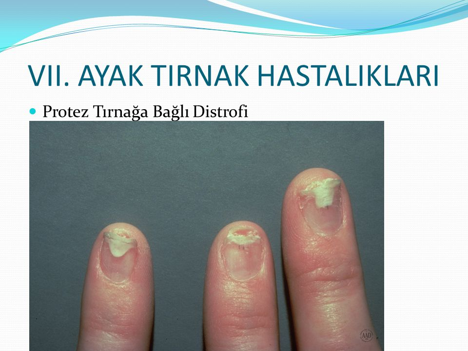 VII. AYAK TIRNAK HASTALIKLARI Protez Tırnağa Bağlı Distrofi
