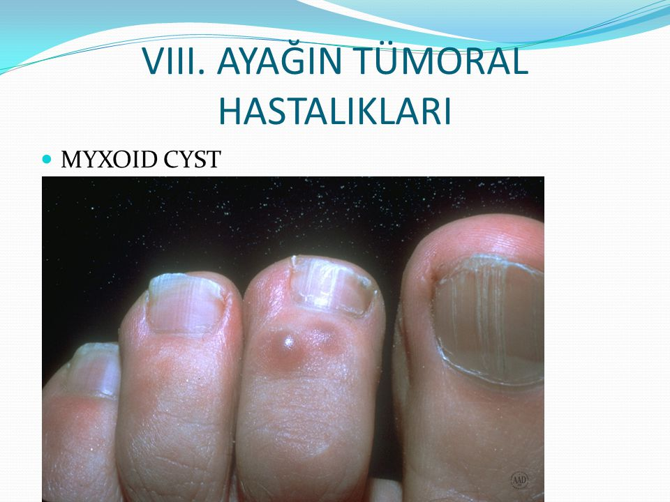 VIII. AYAĞIN TÜMORAL HASTALIKLARI MYXOID CYST