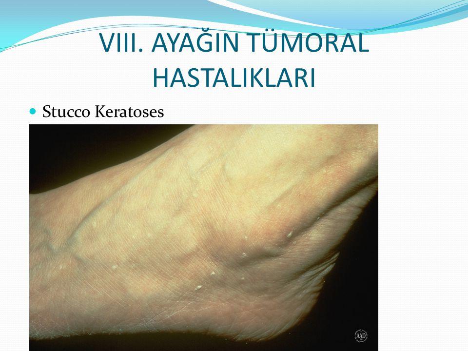 VIII. AYAĞIN TÜMORAL HASTALIKLARI Stucco Keratoses