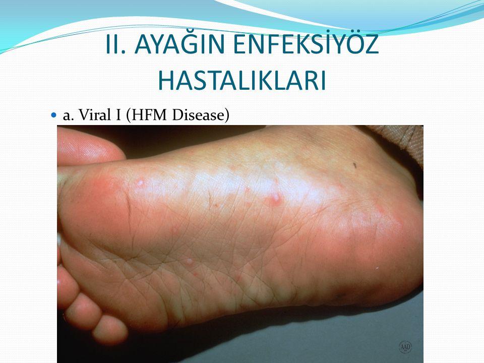 II. AYAĞIN ENFEKSİYÖZ HASTALIKLARI a. Viral I (HFM Disease)