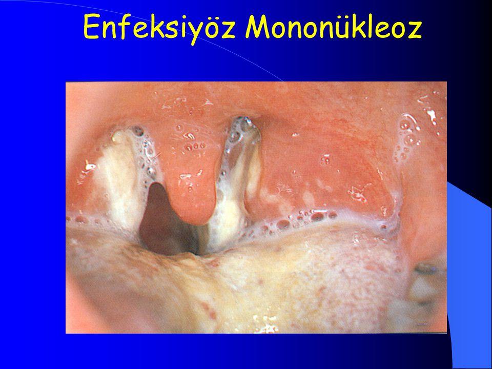 Akut İnflamasyonlar Akut Tonsillit -Tedavi; sistemik antibiyotik, bol hidrasyon, analjezik, istirahat.