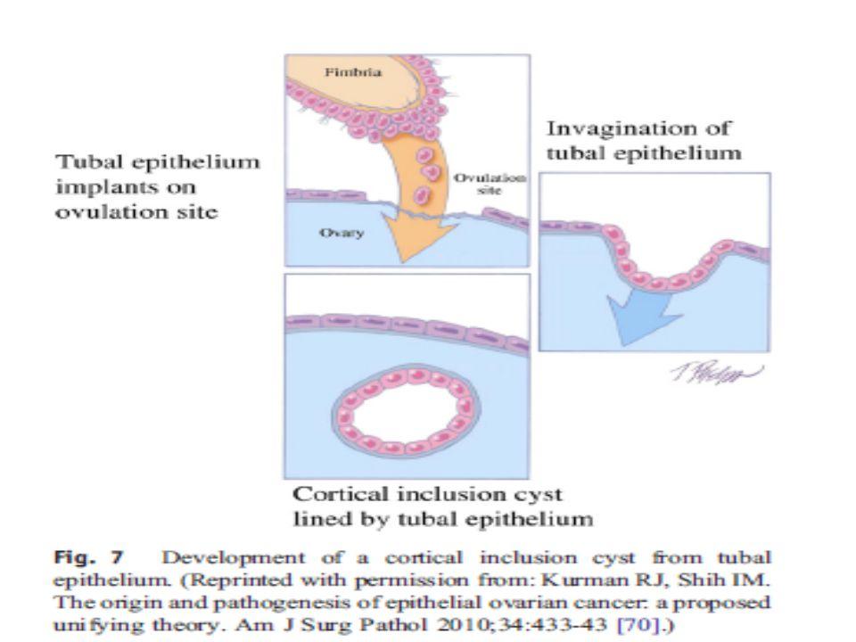 İNFERTİLİTE KANSER PATOGENEZ Ovulasyon indüksiyonu sonrası ortaya çıkan faktörler Değişen hormonal çevre – Progesteron – Estrojenler