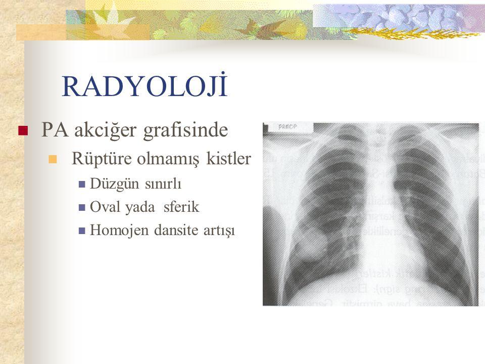 RADYOLOJİ PA akciğer grafisinde Rüptüre olmamış kistler Düzgün sınırlı Oval yada sferik Homojen dansite artışı