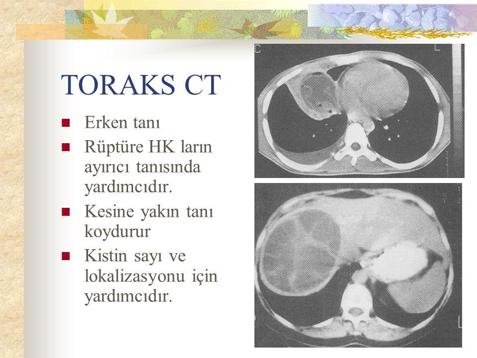 TORAKS CT Erken tanı Rüptüre HK ların ayırıcı tanısında yardımcıdır. Kesine yakın tanı koydurur Kistin sayı ve lokalizasyonu için yardımcıdır.