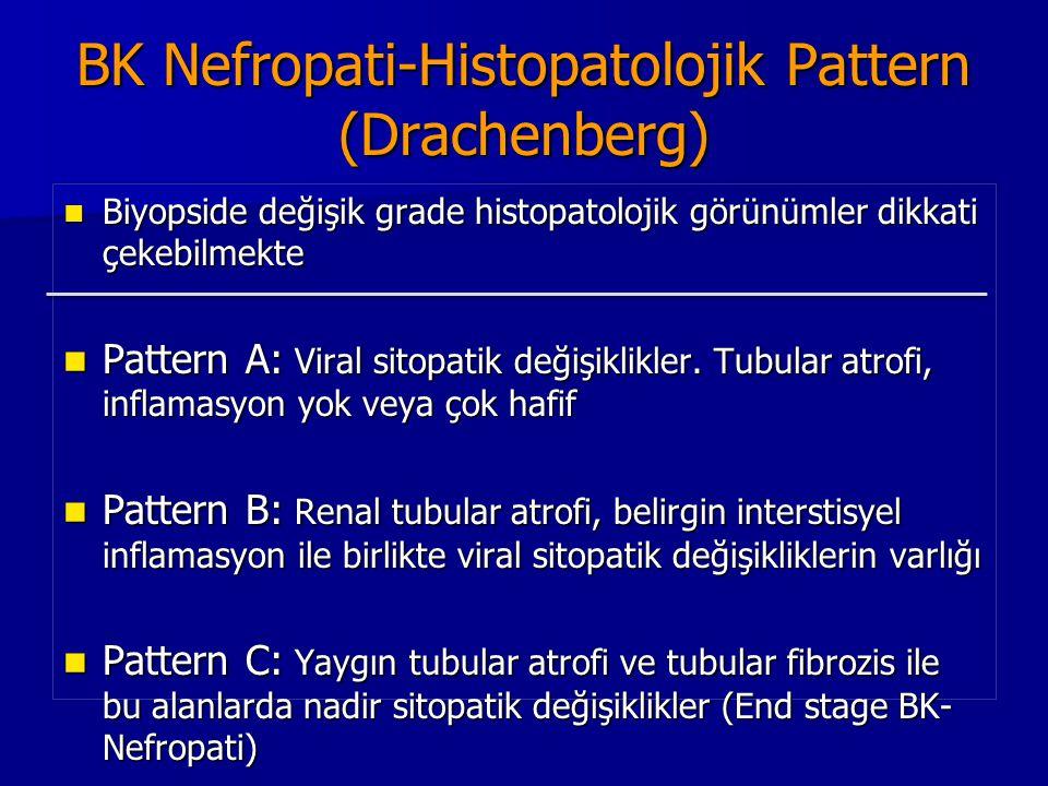 BK Nefropati-Histopatolojik Pattern (Drachenberg) Biyopside değişik grade histopatolojik görünümler dikkati çekebilmekte Biyopside değişik grade histo