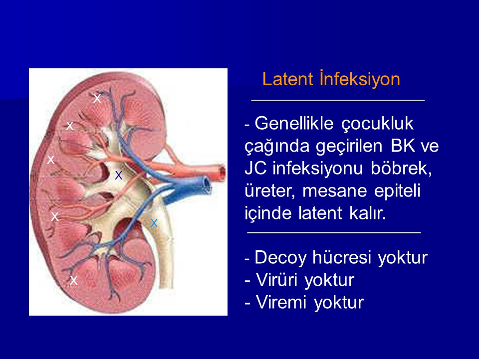 X X X X X X Latent İnfeksiyon - Genellikle çocukluk çağında geçirilen BK ve JC infeksiyonu böbrek, üreter, mesane epiteli içinde latent kalır. - Decoy