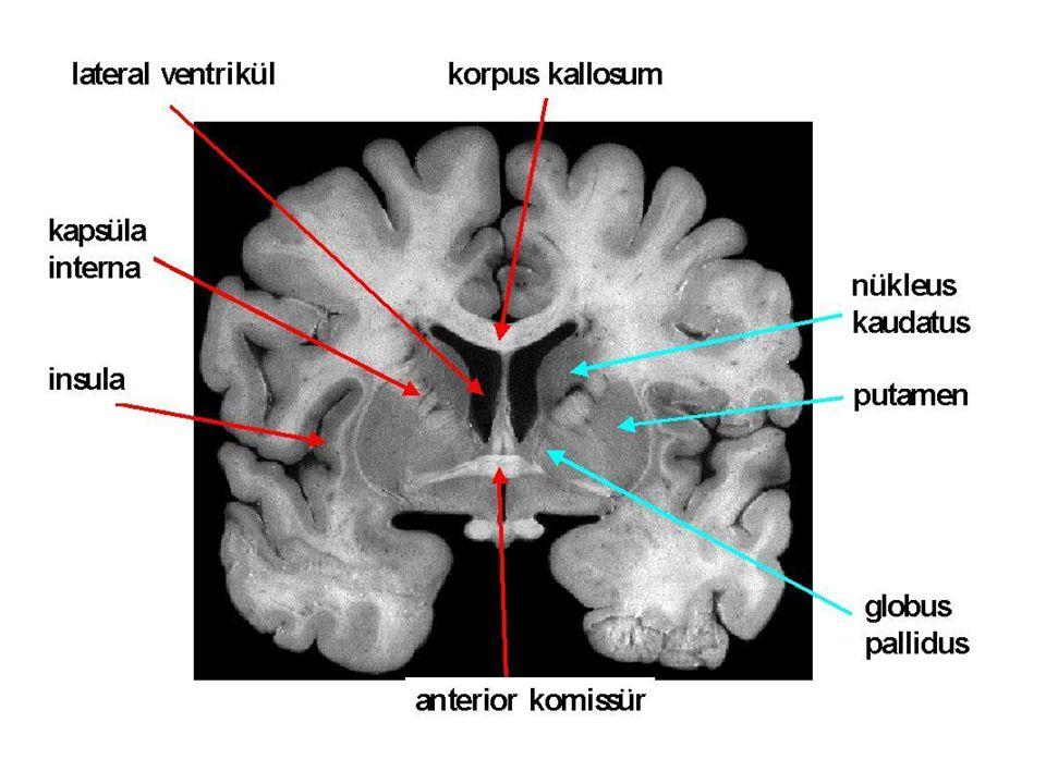 Distonilerin Sınıflaması I-Tutulum yerine göre –Fokal –Segmental –Multifokal –Hemidistoni –Jeneralize II- Başlangıç yaşına göre –Erken (28 yaşından önce) –Geç (28 yaşından sonra) III- Etyolojiye göre –Primer (İdyopatik) –Sekonder (Semptomatik) Heredodejeneratif hastalıklar, kernikterus, toksinler, hipoksi, ilaçlar, infeksiyonlar, vasküler, travma