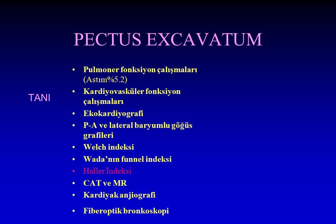 PECTUS EXCAVATUM TANI Pulmoner fonksiyon çalışmaları (Astım%5.2) Kardiyovasküler fonksiyon çalışmaları Ekokardiyografi P-A ve lateral baryumlu göğüs g
