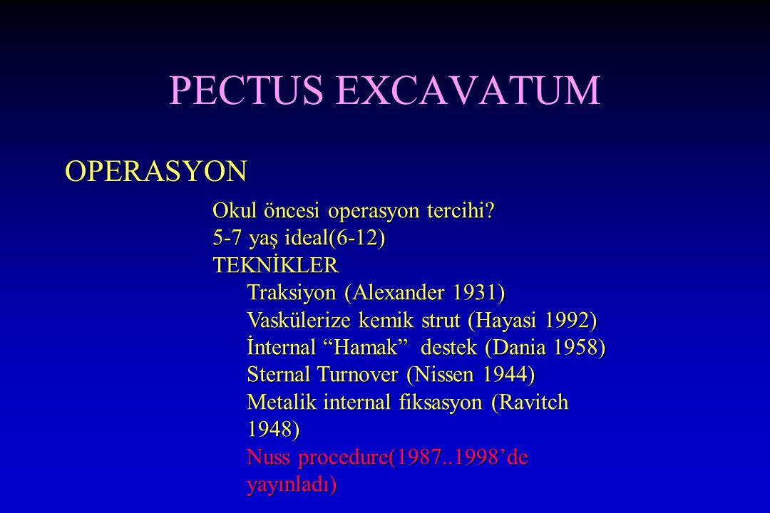 PECTUS EXCAVATUM OPERASYON Okul öncesi operasyon tercihi? 5-7 yaş ideal(6-12) TEKNİKLER Traksiyon (Alexander 1931) Vaskülerize kemik strut (Hayasi 199