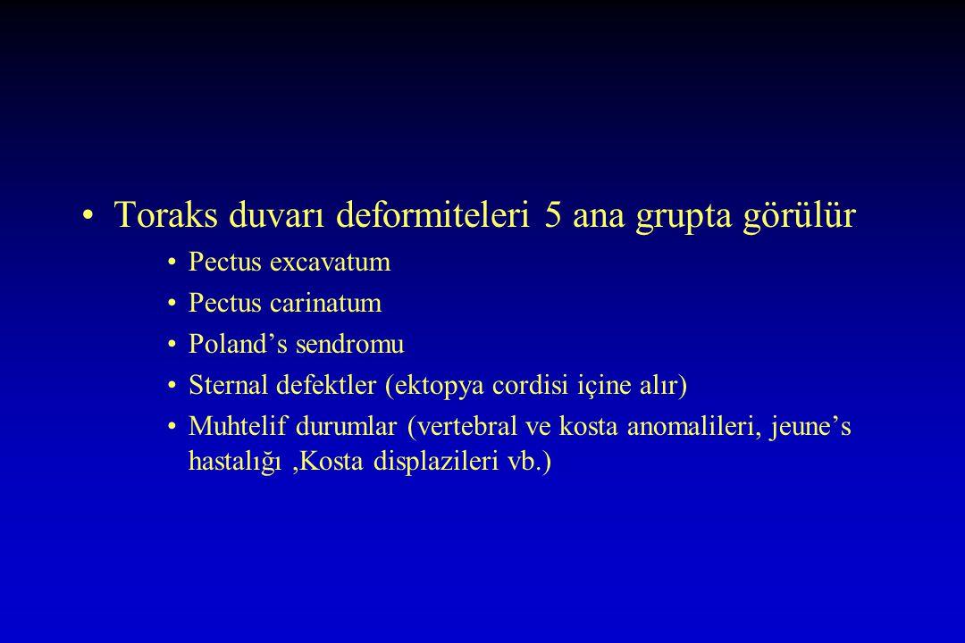Toraks duvarı deformiteleri 5 ana grupta görülür Pectus excavatum Pectus carinatum Poland's sendromu Sternal defektler (ektopya cordisi içine alır) Muhtelif durumlar (vertebral ve kosta anomalileri, jeune's hastalığı,Kosta displazileri vb.)