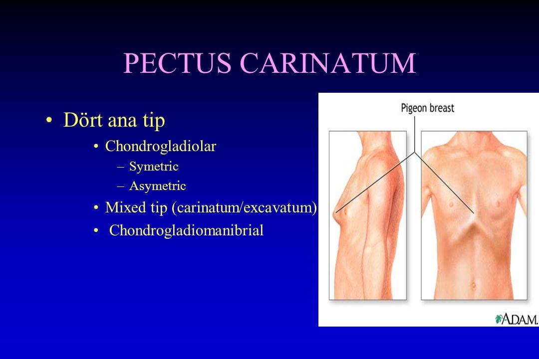 PECTUS CARINATUM Dört ana tip Chondrogladiolar –Symetric –Asymetric Mixed tip (carinatum/excavatum) Chondrogladiomanibrial