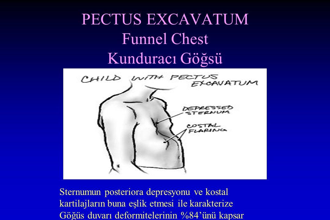 PECTUS EXCAVATUM Funnel Chest Kunduracı Göğsü Sternumun posteriora depresyonu ve kostal kartilajların buna eşlik etmesi ile karakterize Göğüs duvarı deformitelerinin %84'ünü kapsar