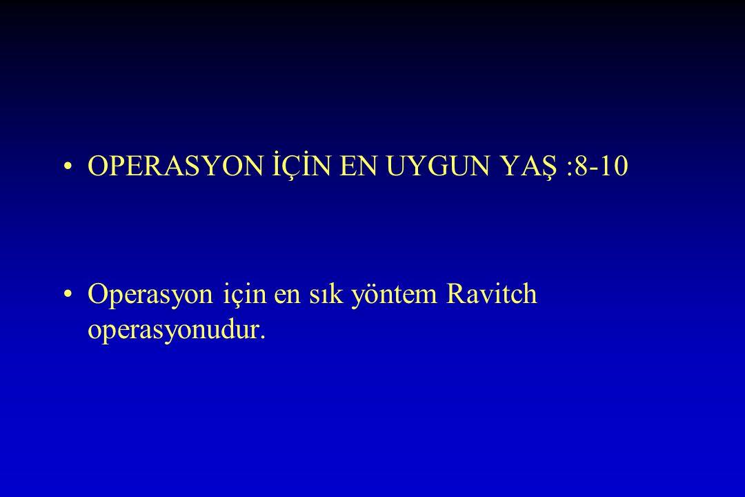 OPERASYON İÇİN EN UYGUN YAŞ :8-10 Operasyon için en sık yöntem Ravitch operasyonudur.