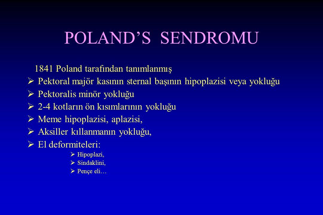 POLAND'S SENDROMU 1841 Poland tarafından tanımlanmış  Pektoral majör kasının sternal başının hipoplazisi veya yokluğu  Pektoralis minör yokluğu  2-4 kotların ön kısımlarının yokluğu  Meme hipoplazisi, aplazisi,  Aksiller kıllanmanın yokluğu,  El deformiteleri:  Hipoplazi,  Sindaklini,  Pençe eli…