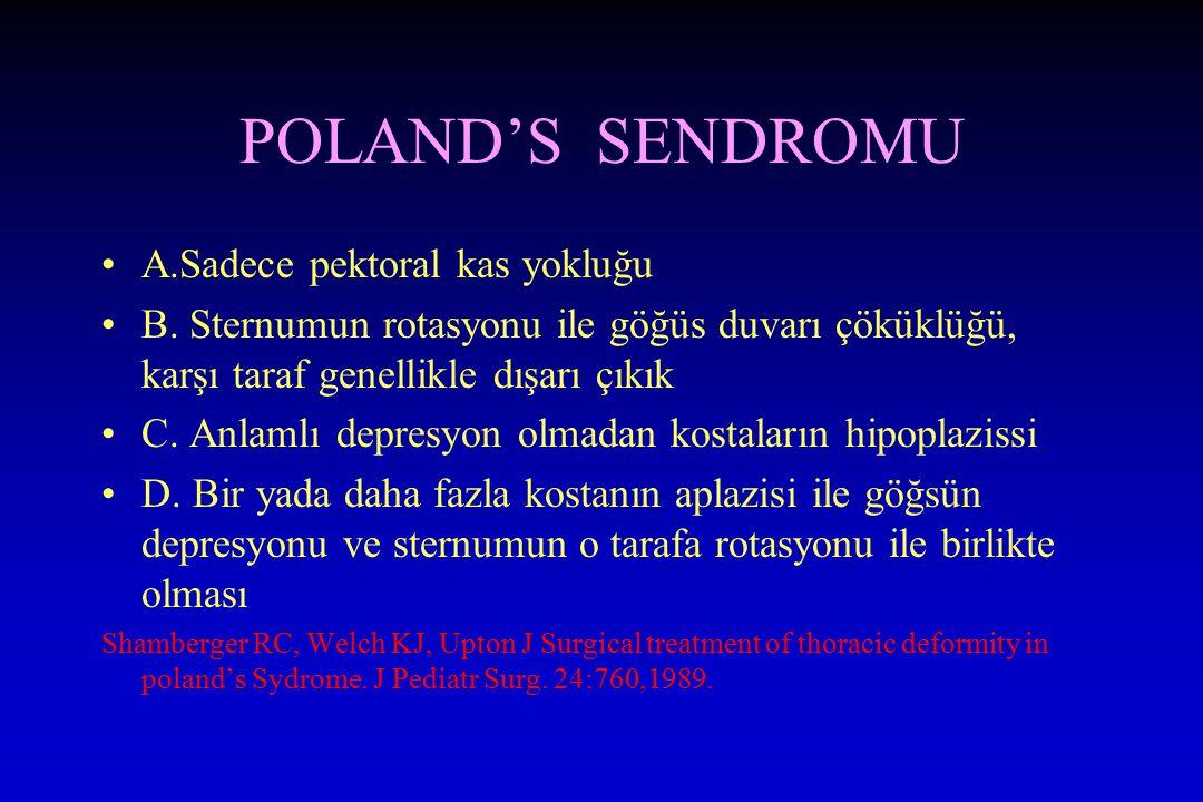 POLAND'S SENDROMU A.Sadece pektoral kas yokluğu B. Sternumun rotasyonu ile göğüs duvarı çöküklüğü, karşı taraf genellikle dışarı çıkık C. Anlamlı depr