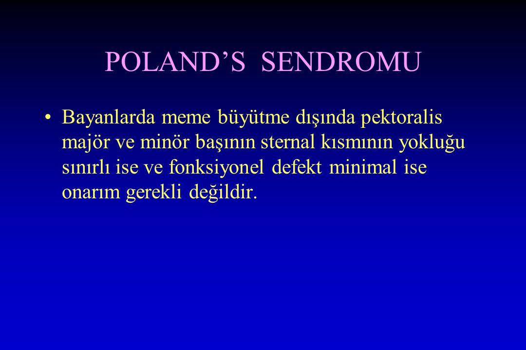 POLAND'S SENDROMU Bayanlarda meme büyütme dışında pektoralis majör ve minör başının sternal kısmının yokluğu sınırlı ise ve fonksiyonel defekt minimal ise onarım gerekli değildir.
