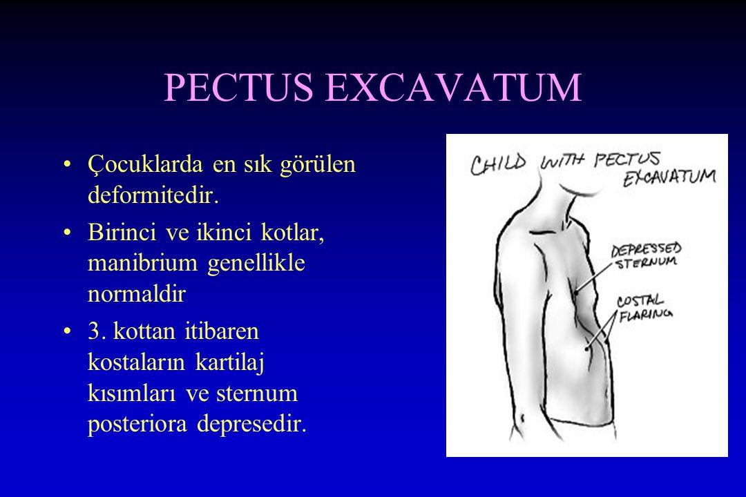 PECTUS EXCAVATUM Çocuklarda en sık görülen deformitedir. Birinci ve ikinci kotlar, manibrium genellikle normaldir 3. kottan itibaren kostaların kartil