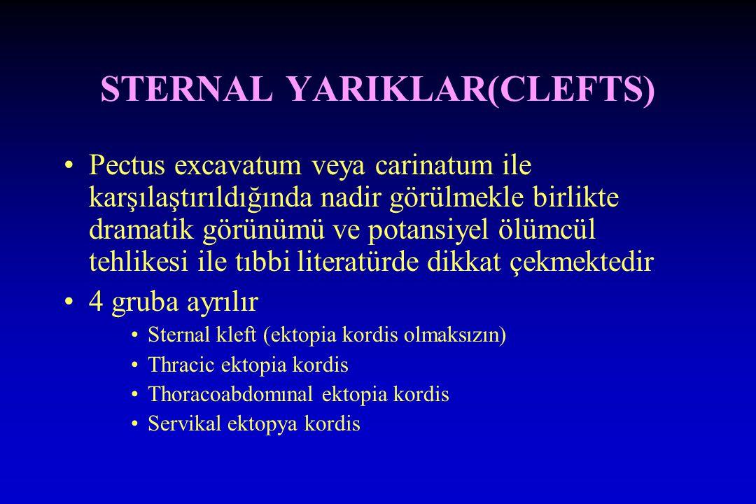 STERNAL YARIKLAR(CLEFTS) Pectus excavatum veya carinatum ile karşılaştırıldığında nadir görülmekle birlikte dramatik görünümü ve potansiyel ölümcül tehlikesi ile tıbbi literatürde dikkat çekmektedir 4 gruba ayrılır Sternal kleft (ektopia kordis olmaksızın) Thracic ektopia kordis Thoracoabdomınal ektopia kordis Servikal ektopya kordis