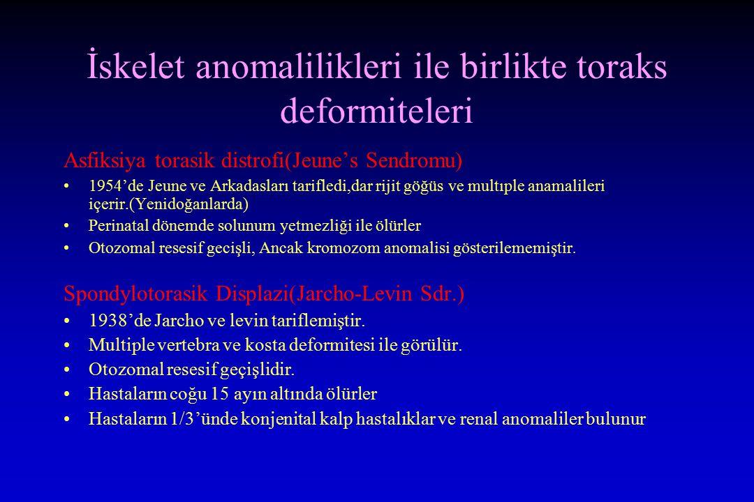 İskelet anomalilikleri ile birlikte toraks deformiteleri Asfiksiya torasik distrofi(Jeune's Sendromu) 1954'de Jeune ve Arkadasları tarifledi,dar rijit göğüs ve multıple anamalileri içerir.(Yenidoğanlarda) Perinatal dönemde solunum yetmezliği ile ölürler Otozomal resesif gecişli, Ancak kromozom anomalisi gösterilememiştir.