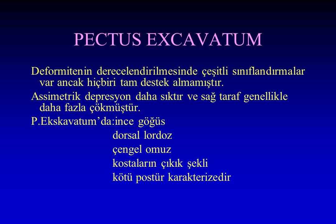 PECTUS EXCAVATUM Deformitenin derecelendirilmesinde çeşitli sınıflandırmalar var ancak hiçbiri tam destek almamıştır. Assimetrik depresyon daha sıktır