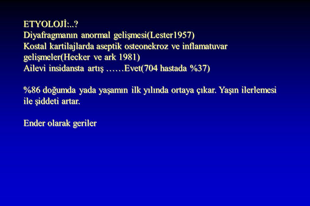 ETYOLOJİ:..? Diyafragmanın anormal gelişmesi(Lester1957) Kostal kartilajlarda aseptik osteonekroz ve inflamatuvar gelişmeler(Hecker ve ark 1981) Ailev