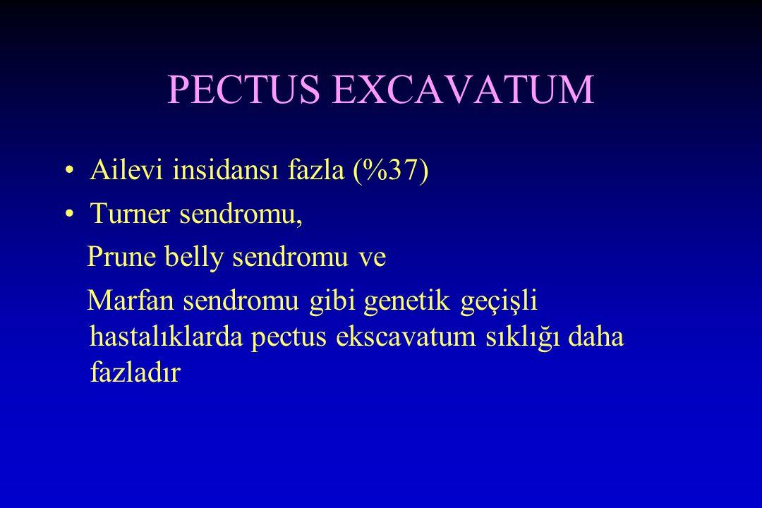 PECTUS EXCAVATUM Ailevi insidansı fazla (%37) Turner sendromu, Prune belly sendromu ve Marfan sendromu gibi genetik geçişli hastalıklarda pectus ekscavatum sıklığı daha fazladır