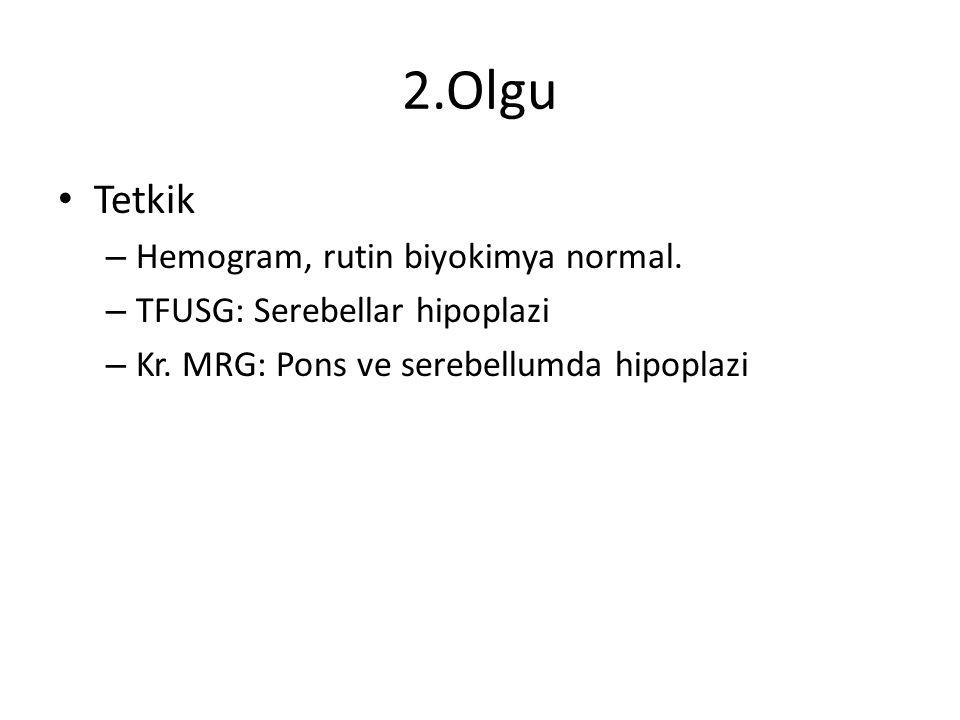 2.Olgu Tetkik – Hemogram, rutin biyokimya normal. – TFUSG: Serebellar hipoplazi – Kr. MRG: Pons ve serebellumda hipoplazi