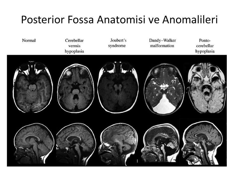 Posterior Fossa Anatomisi ve Anomalileri