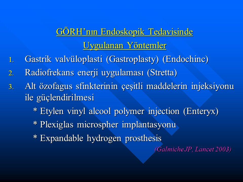 GÖRH'nın Endoskopik Tedavisinde Uygulanan Yöntemler 1. Gastrik valvüloplasti (Gastroplasty) (Endochinc) 2. Radiofrekans enerji uygulaması (Stretta) 3.