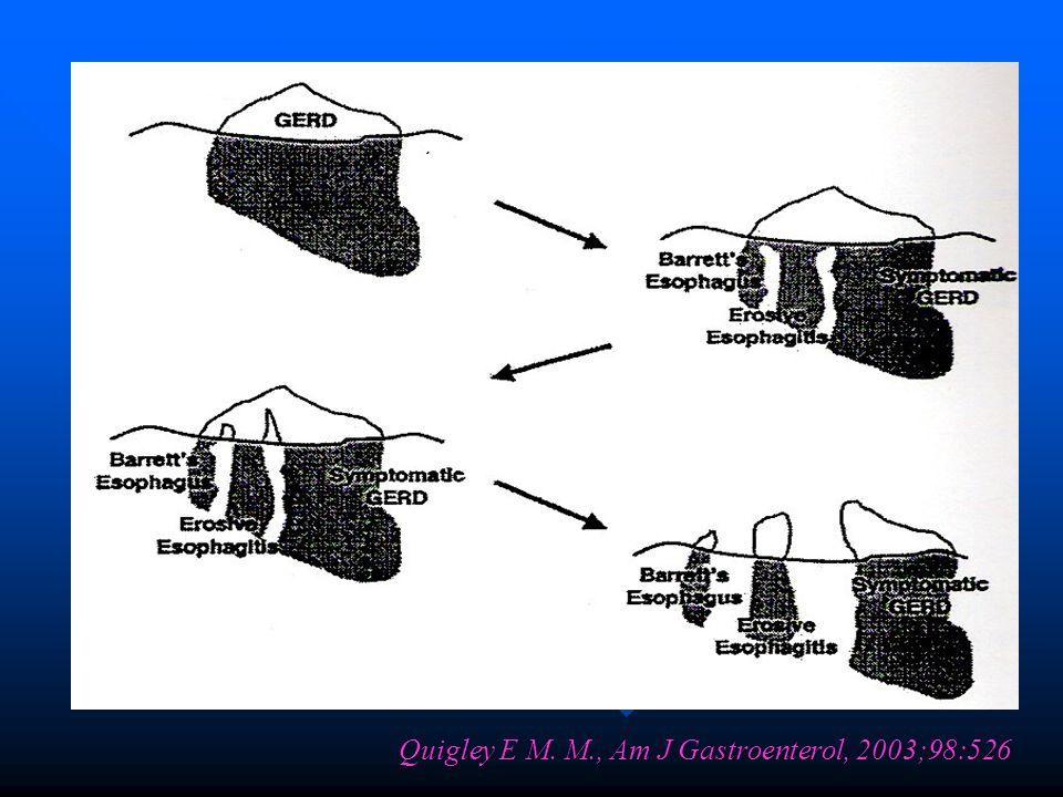 Barret özofagusunda displazi mevcut ise PPI tedavisi ile bunu geriye döndürmek mümkün değildir.