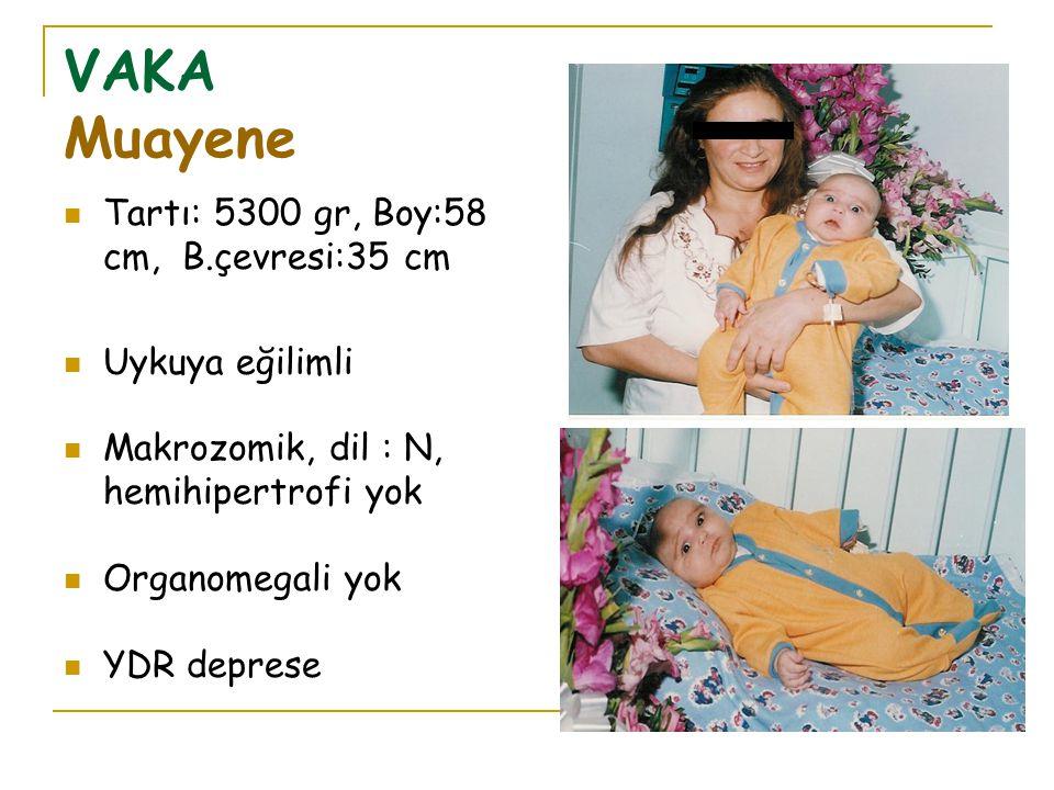 VAKA Muayene Tartı: 5300 gr, Boy:58 cm, B.çevresi:35 cm Uykuya eğilimli Makrozomik, dil : N, hemihipertrofi yok Organomegali yok YDR deprese