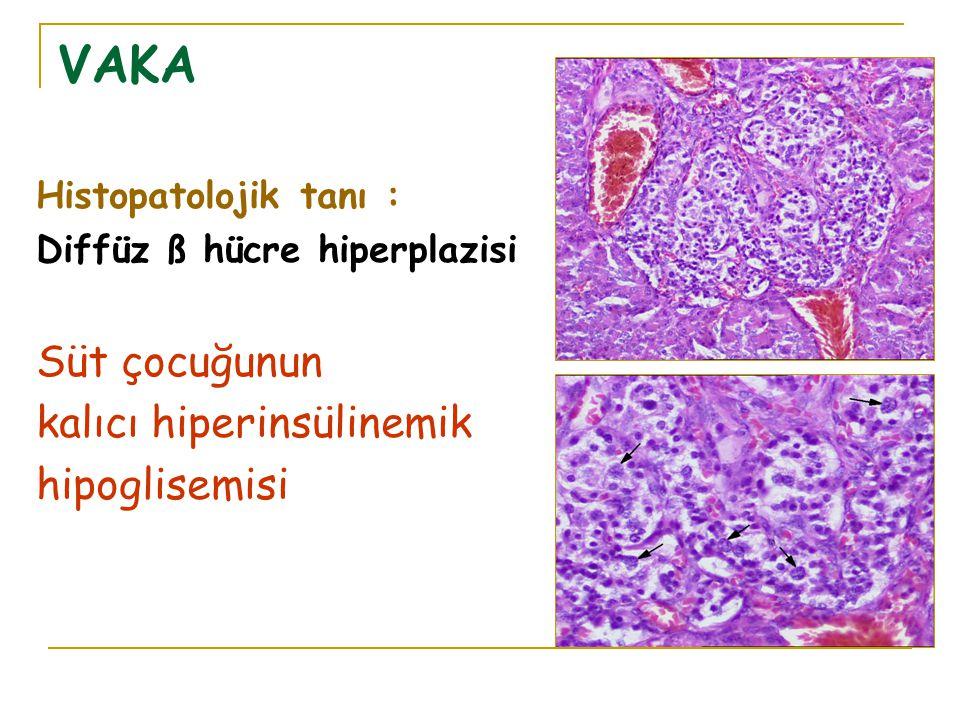 VAKA Histopatolojik tanı : Diffüz ß hücre hiperplazisi Süt çocuğunun kalıcı hiperinsülinemik hipoglisemisi