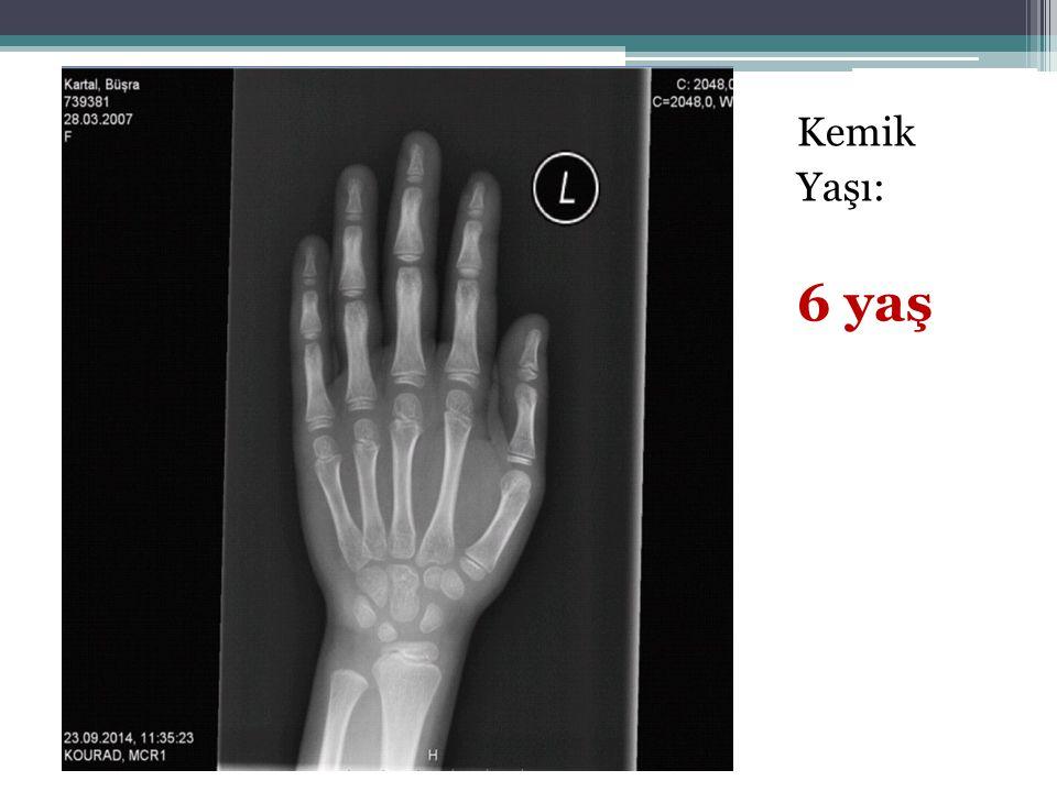 Kemik Yaşı: 6 yaş