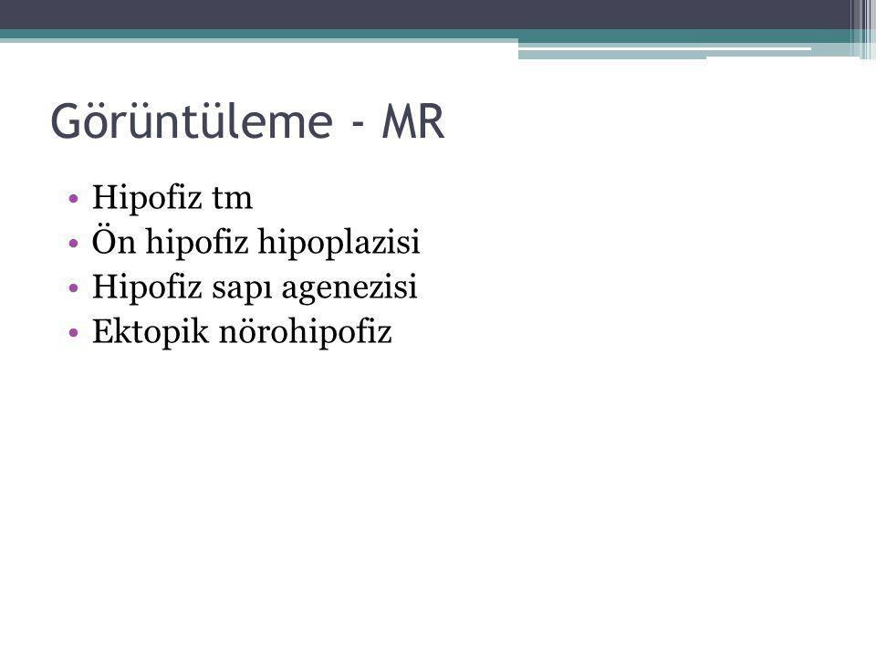 Görüntüleme - MR Hipofiz tm Ön hipofiz hipoplazisi Hipofiz sapı agenezisi Ektopik nörohipofiz