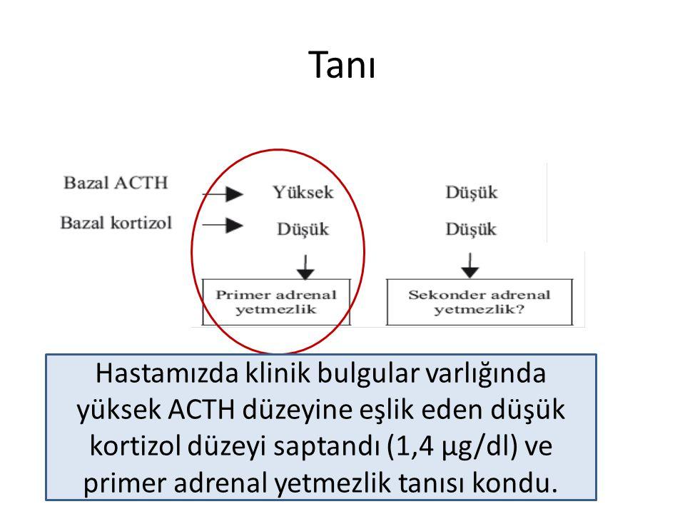 Tanı Hastamızda klinik bulgular varlığında yüksek ACTH düzeyine eşlik eden düşük kortizol düzeyi saptandı (1,4 µg/dl) ve primer adrenal yetmezlik tanı