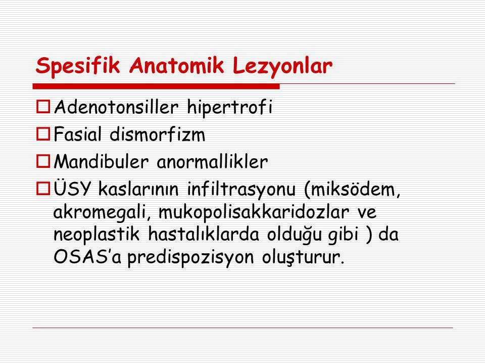 Spesifik Anatomik Lezyonlar  Adenotonsiller hipertrofi  Fasial dismorfizm  Mandibuler anormallikler  ÜSY kaslarının infiltrasyonu (miksödem, akromegali, mukopolisakkaridozlar ve neoplastik hastalıklarda olduğu gibi ) da OSAS'a predispozisyon oluşturur.
