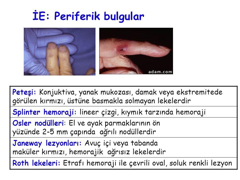 İE: Periferik bulgular Peteşi: Konjuktiva, yanak mukozası, damak veya ekstremitede görülen kırmızı, üstüne basmakla solmayan lekelerdir Splinter hemor
