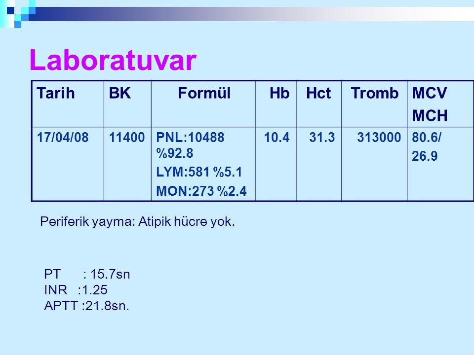 TarihBK Formül Hb Hct TrombMCV MCH 17/04/0811400PNL:10488 %92.8 LYM:581 %5.1 MON:273 %2.4 10.4 31.3 31300080.6/ 26.9 Laboratuvar Periferik yayma: Atip