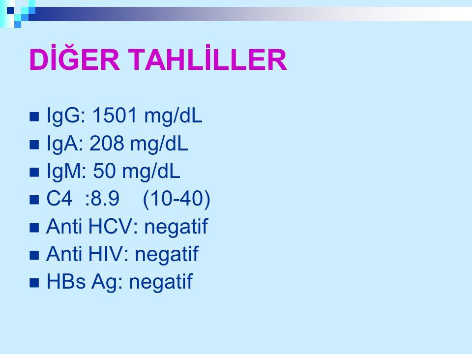 DİĞER TAHLİLLER IgG: 1501 mg/dL IgA: 208 mg/dL IgM: 50 mg/dL C4 :8.9 (10-40) Anti HCV: negatif Anti HIV: negatif HBs Ag: negatif