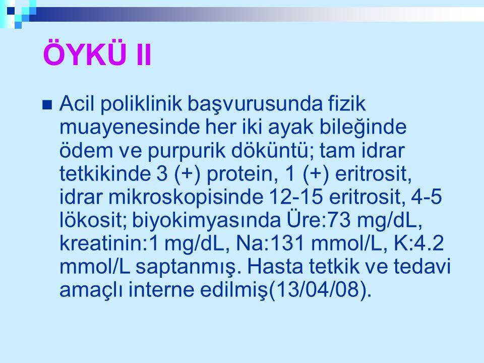 ÖYKÜ II Acil poliklinik başvurusunda fizik muayenesinde her iki ayak bileğinde ödem ve purpurik döküntü; tam idrar tetkikinde 3 (+) protein, 1 (+) eri
